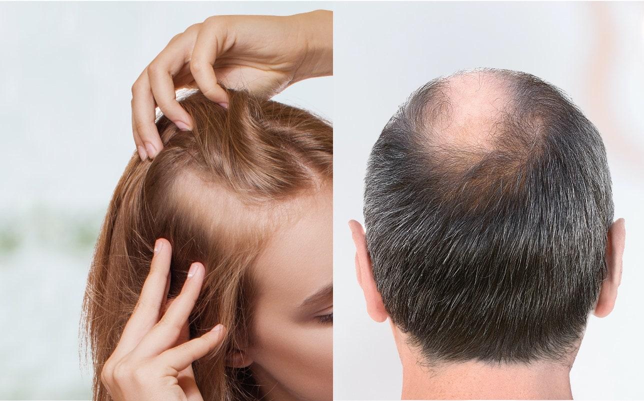 Mann und Frau mit Haarausfall