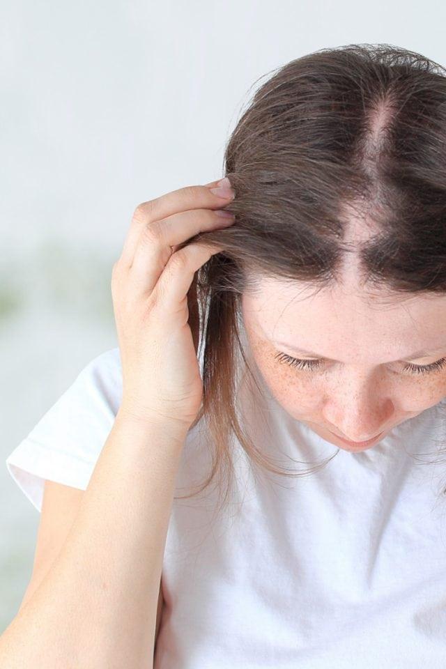 Dunkelhaarige Frau mit Haarausfall und lichtem Scheitel