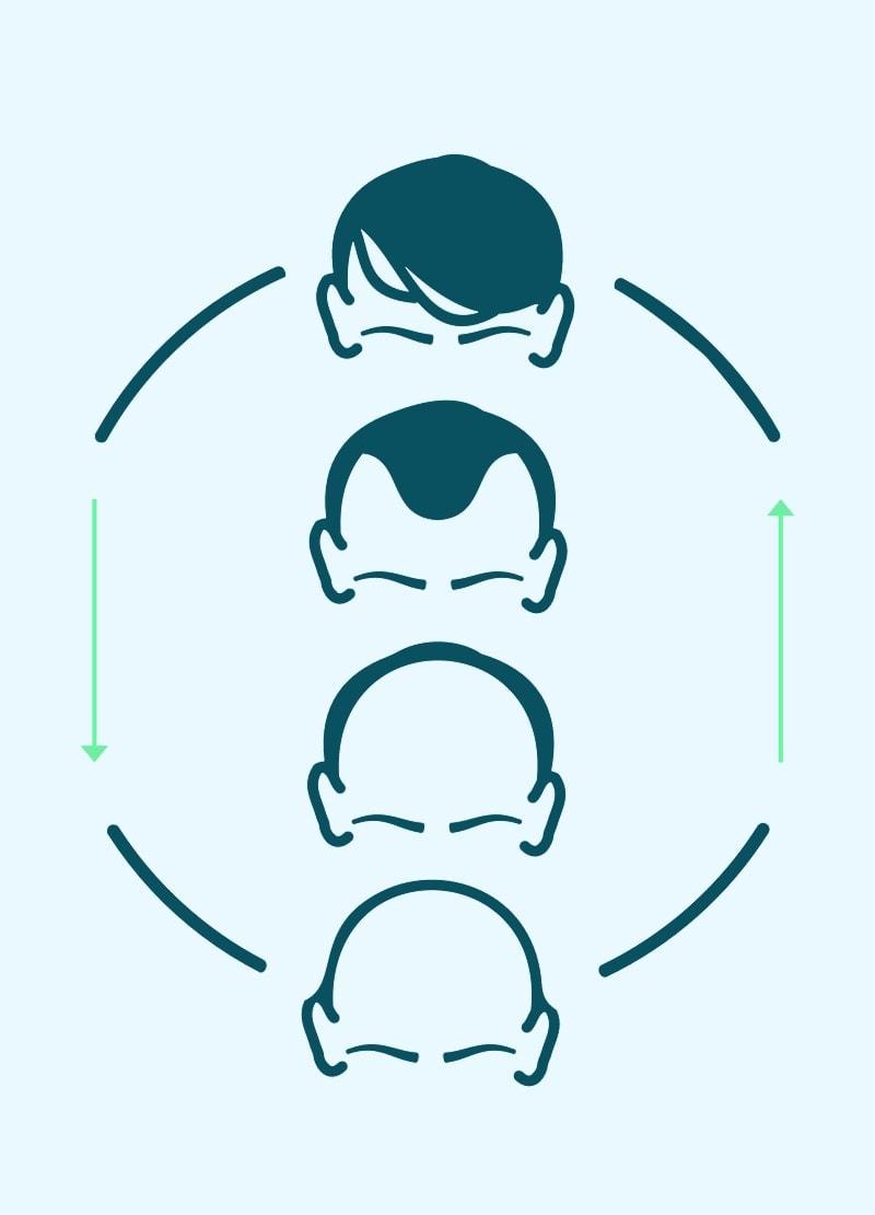 Grafik zu Männern mit verschiedenen Arten von  Haarausfall